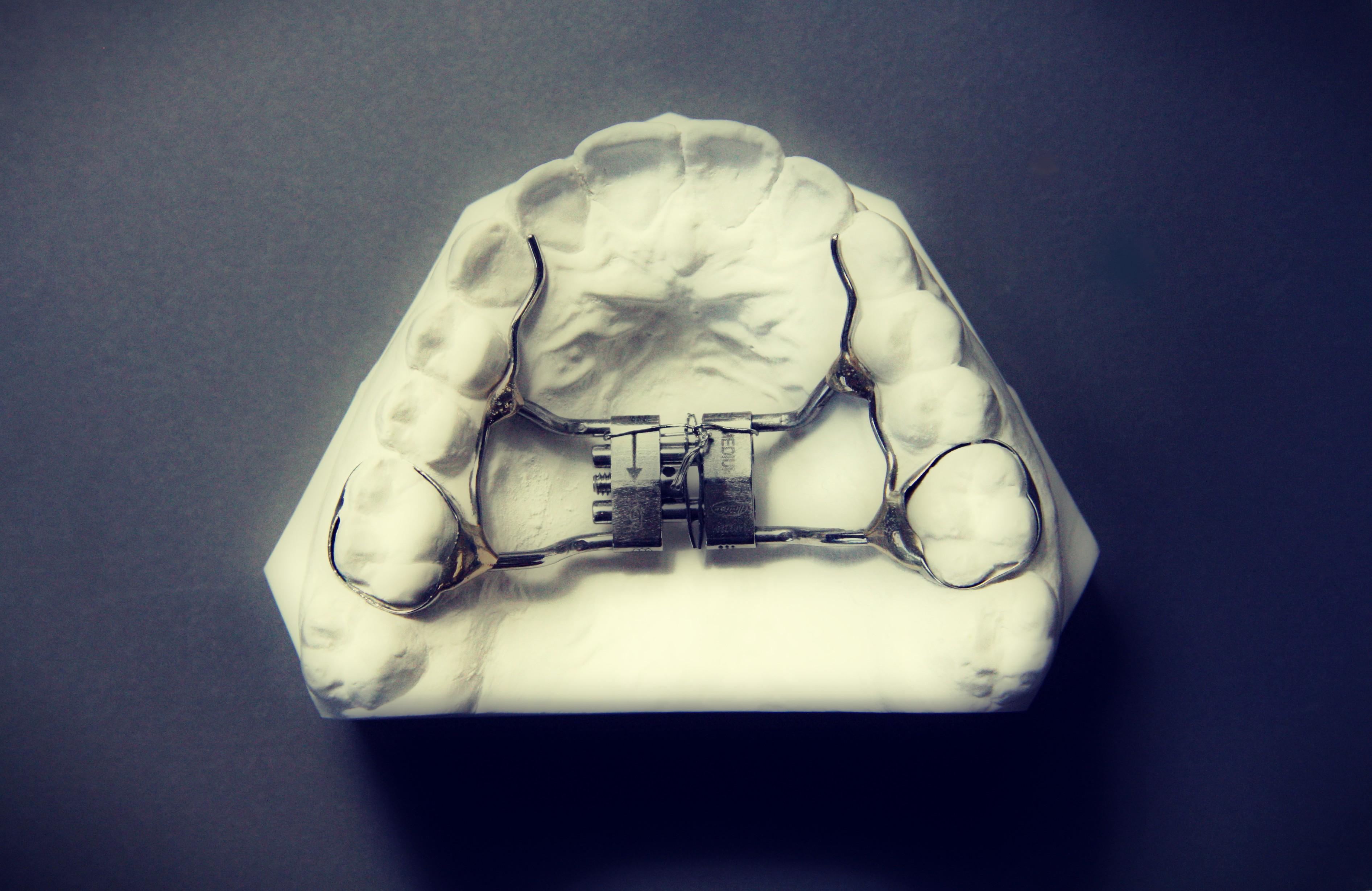 Foto: dit apparaatje maakt de verbreding of distractie van de bovenkaak mogelijk